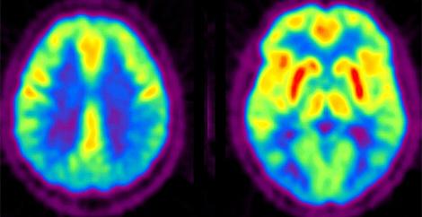 Actividad cerebral después de muertos